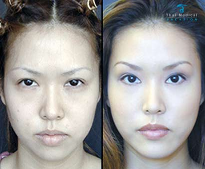 chin-implants-thailand-before-and-after