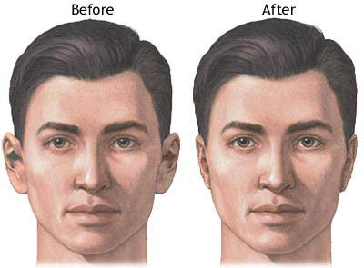 ear-surgery-thailand-male