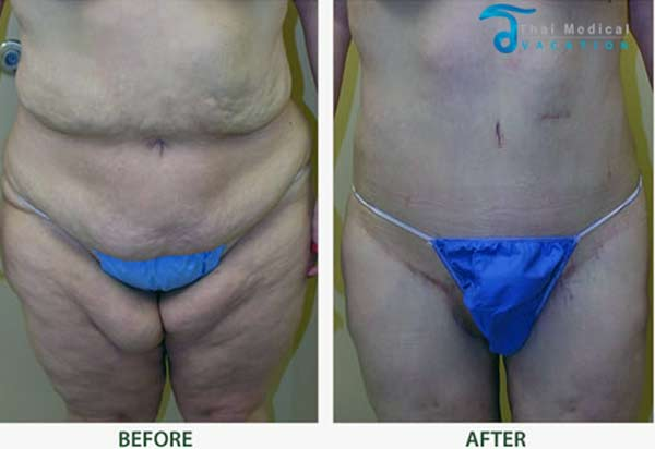 inner-thigh-lift-thailand-before-after-pictures