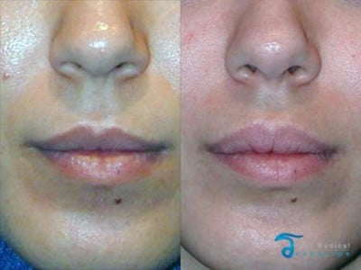 lip-lift-thailand-before-and-after