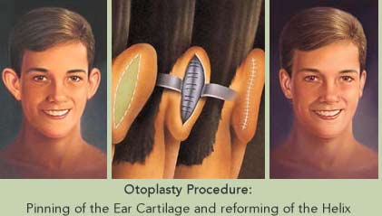 otoplasty-thailand-ear-surgery-thailand