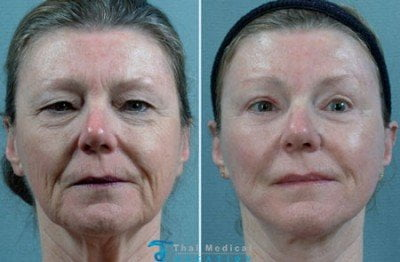 stem-cell-face-lift-in-bangkok-thailand-before-after