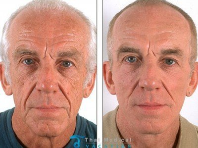stem-cell-facelift-david-bangkok-thailand-before-after-picture