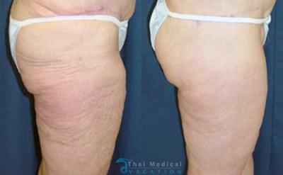 thigh-lift-bangkok-before-after-reviews
