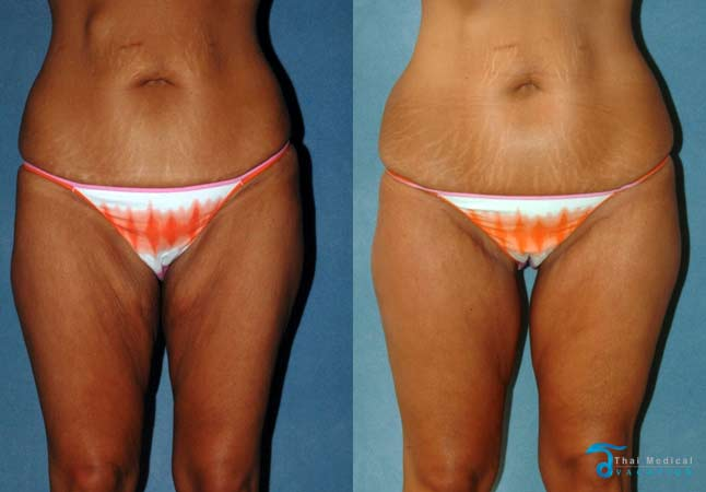 thigh-lift-thailand-before-after-pictures