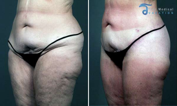thigh-lift-thailand-butt-lift-thailand-before-after-picture