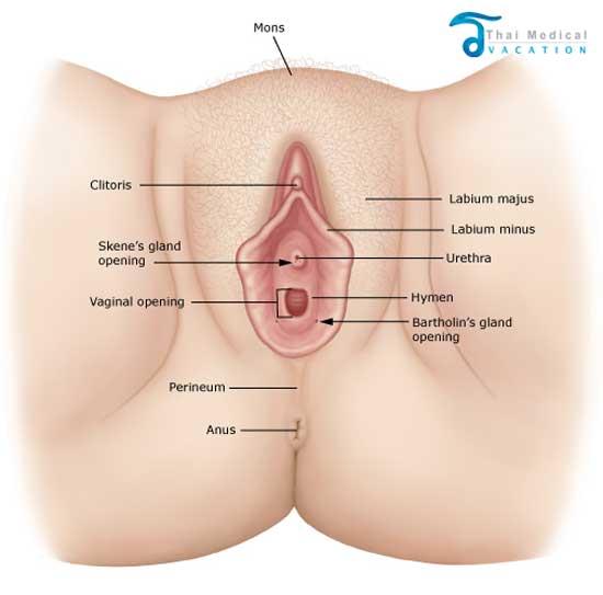 vaginoplasty-thailand-cosmetic gynecology-Thailand