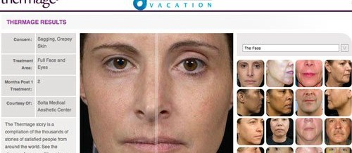 Non-Surgical Thermage CPT Skin Laser Facelift RF Therapy