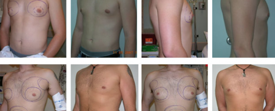 Male Chest Liposuction Thailand|Effective Solutions for Gynecomastia