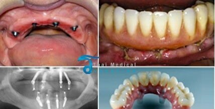 All on 4 & All on 6 Dental Implants