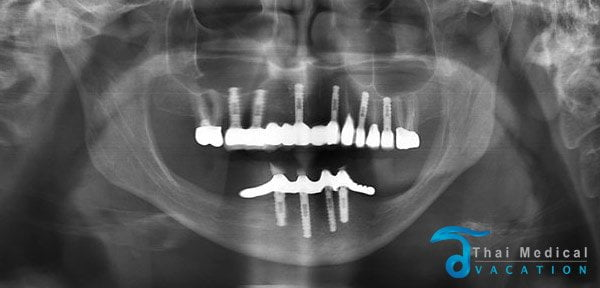 all-on-6-dental-implants-thailand