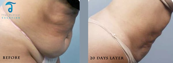 Thailand-BodyTite-liposuction-reviews-pictures-prices