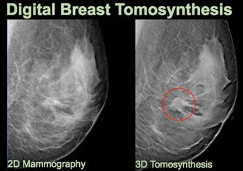 3D-Breast-Tomosynethesis-Mammography