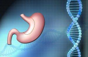Bariatric-Surgery-Treat-Diabetes