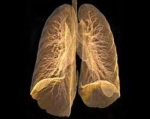 Ex-Vivo-Lung-Washing-Lung-Perfusion