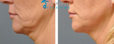 ulthera-thailand-ultherapy-before-and-after-pictures-vanessa
