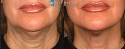 ulthera-thailand-ultherapy-necklift-skin-laser-before-and-after-pictures