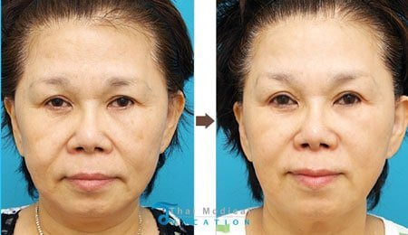 ulthera-thailand-ultherapy-non-surgical-facelift-kim
