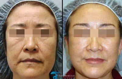 stem cell facelift non surgical facelift stem cell face lift in Thailand