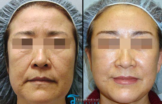Facial rejuvenation cost