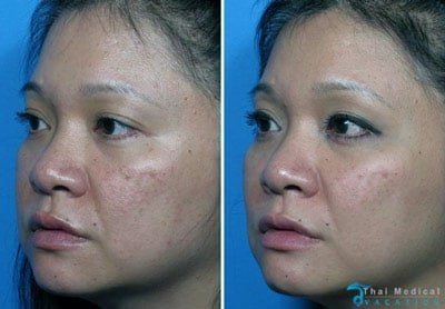 vampire-facelift-thailand-susan-before-after-prp-ha-picture