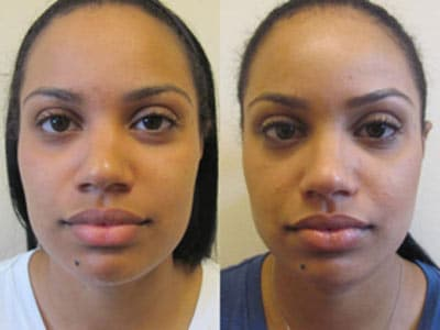 Multi Cultural And Ethnic Cosmetic Surgeries