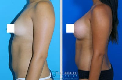 bangkok-tubular-breast-surgery-fix-Asymmetry-thailand-before-after-procedures