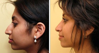 indian-rhinoplasty-before-after