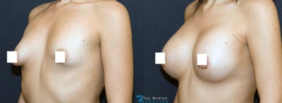 tuberous-breast-surgery-thailand-before-after-procedures