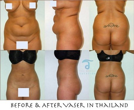 before-after-vaser-lipo-bangkok-thailand
