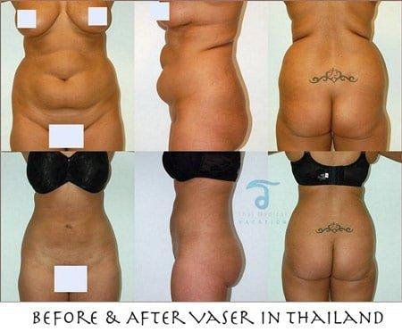 before-after-vaser-lipo-bangkok-thailand