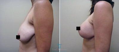 breast-lift-thailand-shelly