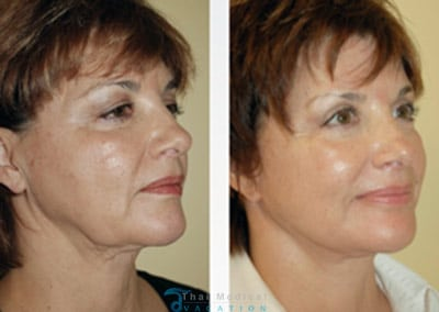 cindy-stem-cell-facelift-bangkok-before-after