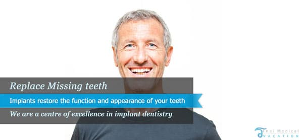 dental-implants-thailand-before-after