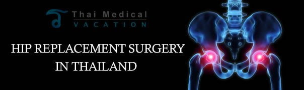 Hip Arthroplasty Amp Total Hip Replacement Surgery Thai
