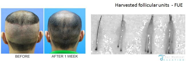 FUE-Micrograting-Transplants-thailand-before-after