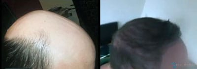 FUE-hair-restoration-thailand-edward-before-after