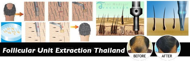 Follicular-Unit-Extraction-bangkok-thailand-before-after