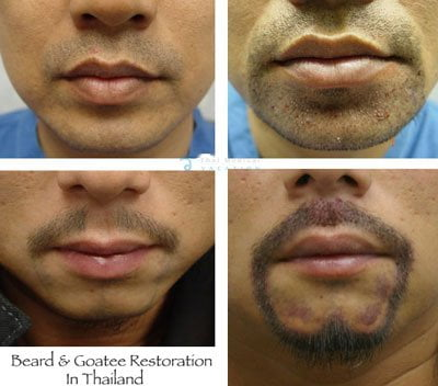 beard-goatee-transplants-facial-hair-restoration