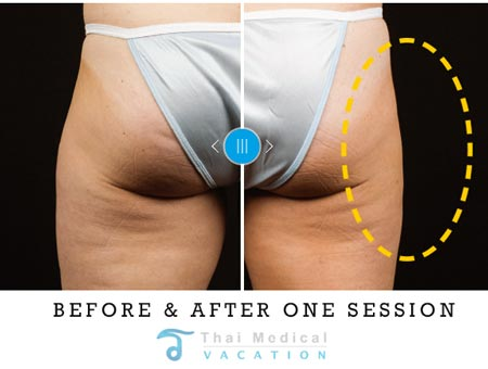 coolsculpting-prices-bangkok-before-after