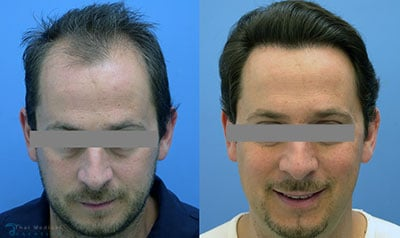 eddie-hair-restoration-prp-hairline-bangkok