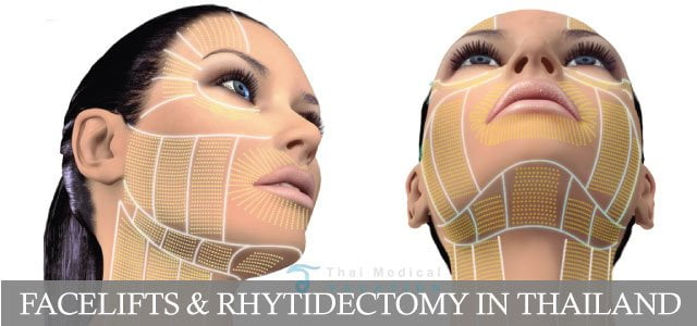 facelifts rhytidectomy thailand