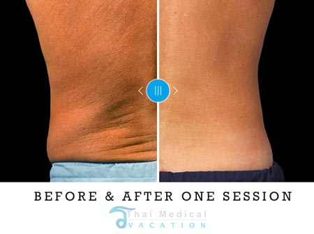 freeze-lipo-coolsculpting-dave-thailand-before-after