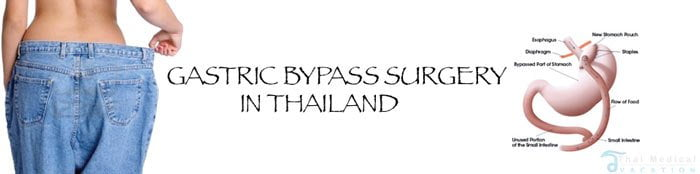 gastric-bypass-surgery-thailand