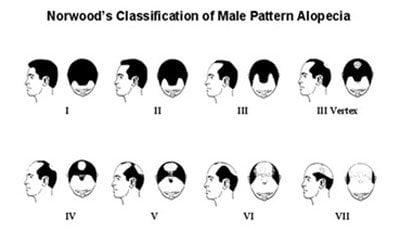 norwood-classification-sytem-hair-thailand