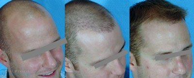 ricky-y-hair-restoration-FUE-micrografting-before-after