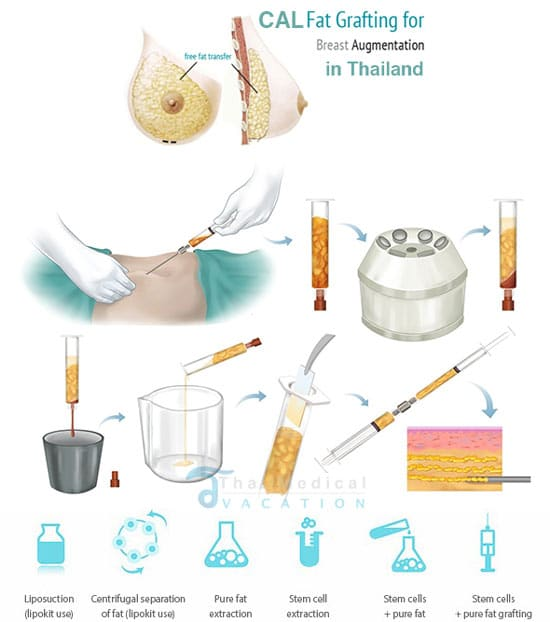 stem-cell-breast-augmentation-thailand