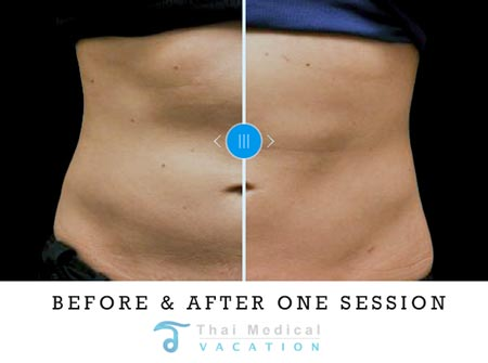 zeltiq-coolsculpting-jane-thailand-before-after