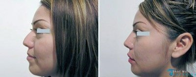 nose-job-thailand-rhinoplasty-kim-before-after