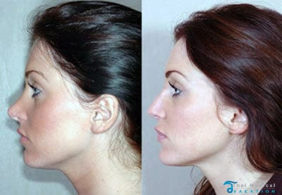 sarah-before-after-nosejob-bangkok